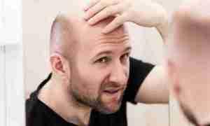 La falacrofobia o el miedo a la calvicie
